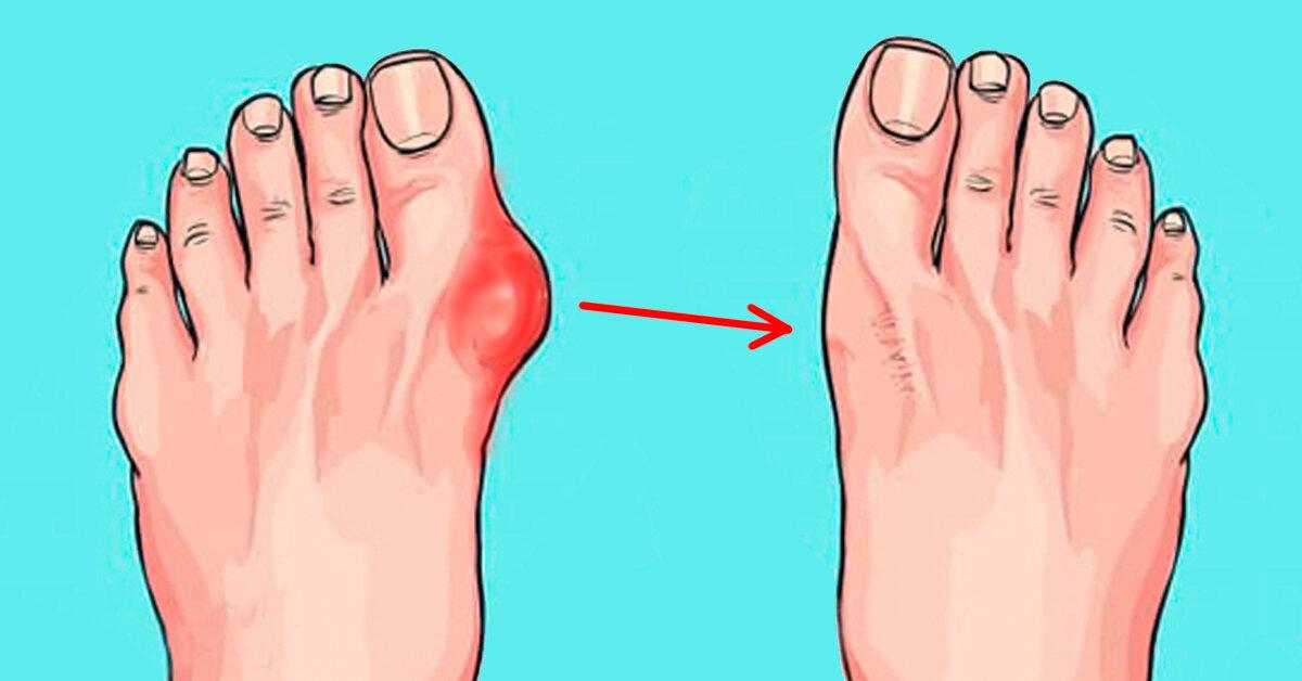 Метод Штаба: Как избавиться от косточек на ногах